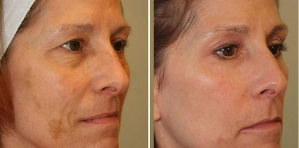 CO2 Skin Resurfacing Englewood & Denver