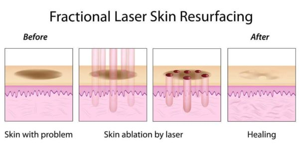 Fractional-Laser-Skin-Resurfacing Englewood