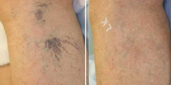 Spider Veins Englewood & Denver