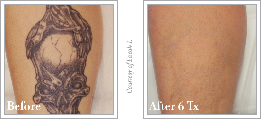 Colorado skin and vein november specials blog for Qualifications for tattoo removal