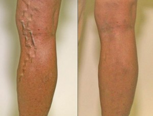 Here Are A Few Tips To Help You Choose Varicose Vein Doctor