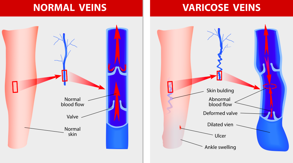 Computer-generated images comparing normal veins with normal blood flow and varicose veins with abnormal blood flow and a deformed valve, dilated vein, ulcer, and ankle swelling