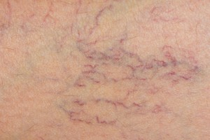 A close up on skin with spider veins