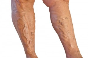 Two legs with varicose veins on white background