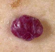 diagnosis_hemangioma Englewood