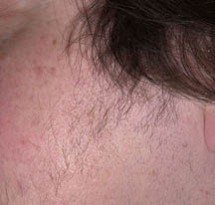 diagnosis_hirsutism