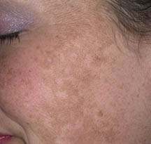 diagnosis_melasma