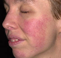 diagnosis_rosacea