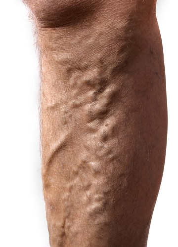 Close up of a man's leg with varicose veins on a white background