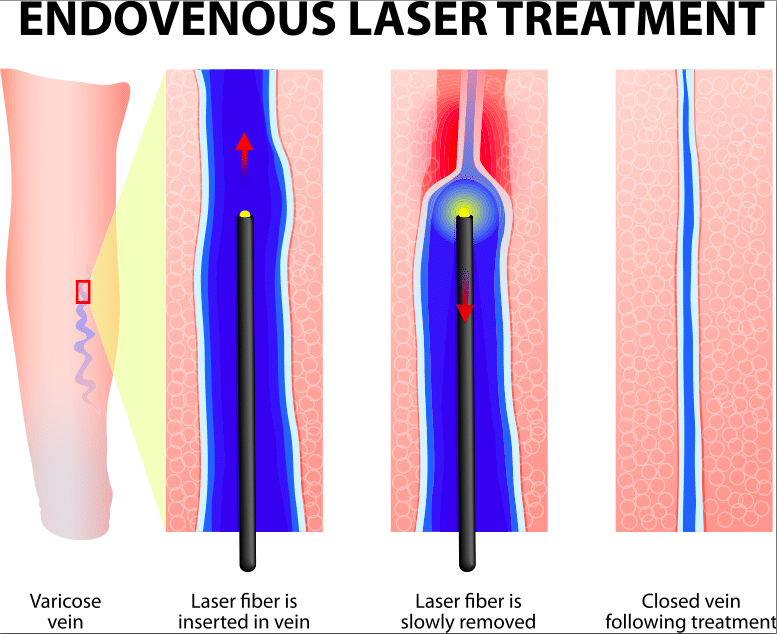 A diagram showing how endovenous laser treatment works within the veins