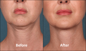 KYBELLA Patient Before and After (Front view) Englewood