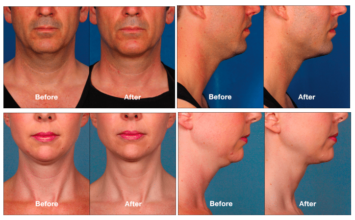KYBELLA® Before & After Photos