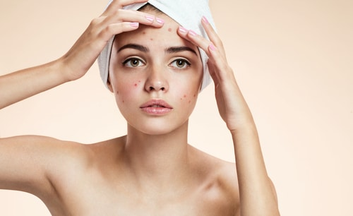 Acne and Its Treatment Options Englewood