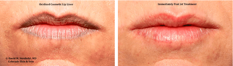 Before and After Permanent Makeup Removal Englewood