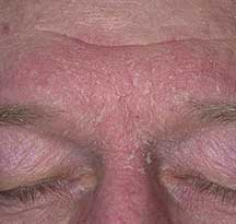 diagnosis-seborrheic-dermatitis