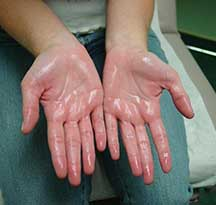 diagnosis_hyperhidrosis Englewood