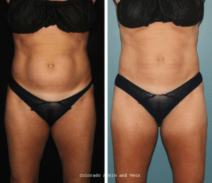 before-and-after-coolsculpting