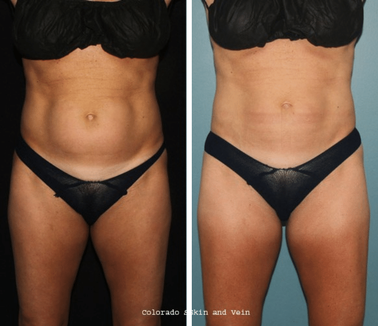 Coolsculpting 174 And Competition Colorado Skin Amp Vein