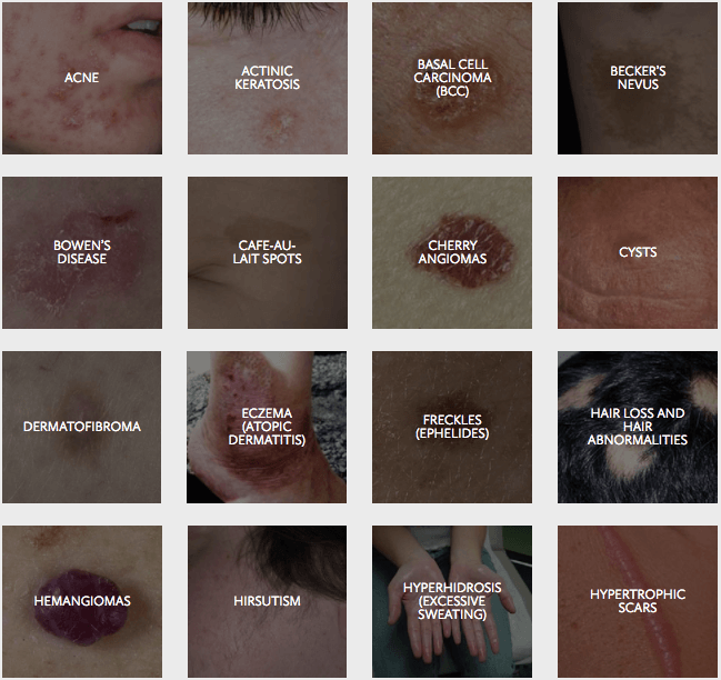 Skin Lesions Englewood
