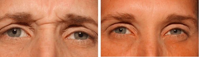 Botox Cosmetic Before After Photos