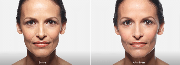 JUVÉDERM VOLLURE™ XC Patient Before and After