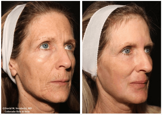CO2 Skin Resurfacing by Dr. Verebelyi Patient Englewood