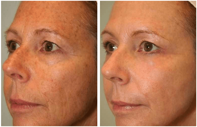 CO2 Skin Resurfacing patient by Dr. Verebelyi-denver