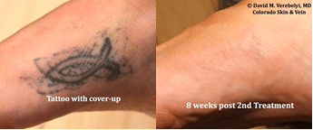 Tattoo Removal by Dr. Verebelyi