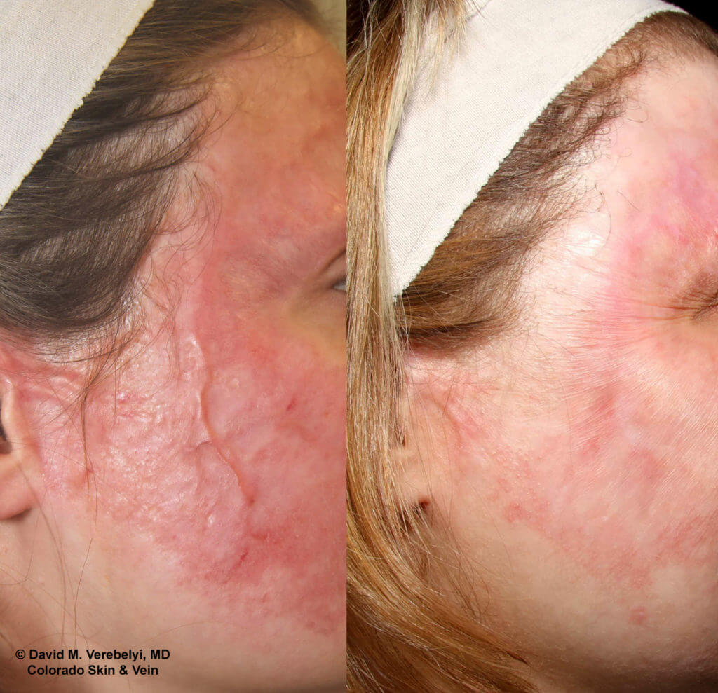 Scar Revision Before & After Gallery Colorado Skin & Vein