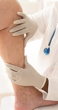 Vein Treatment Englewood & Denver, CO