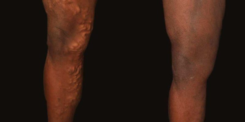 Varicose Vein Removal Englewood & Denver, CO