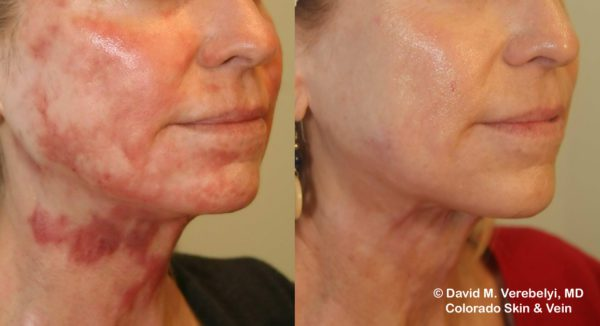 Scar Treatment Englewood