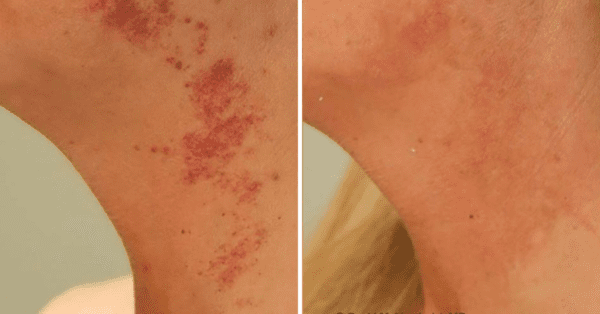 Pulsed Dye Laser Before & After Englewood & Denver, CO