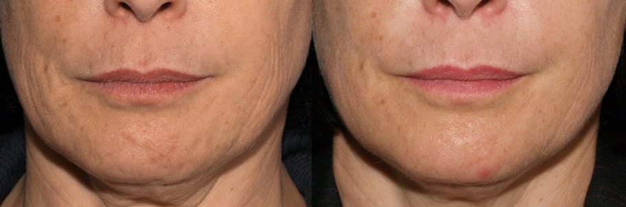 AP Lower Face and Neck englewood