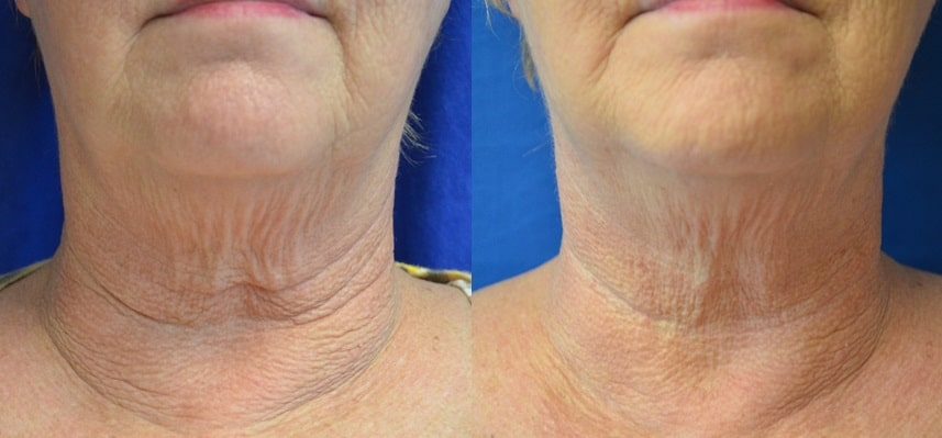 ap-neck-tightening englewood
