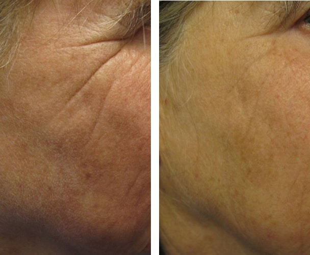 profound-eye-wrinkles_tightening englewood