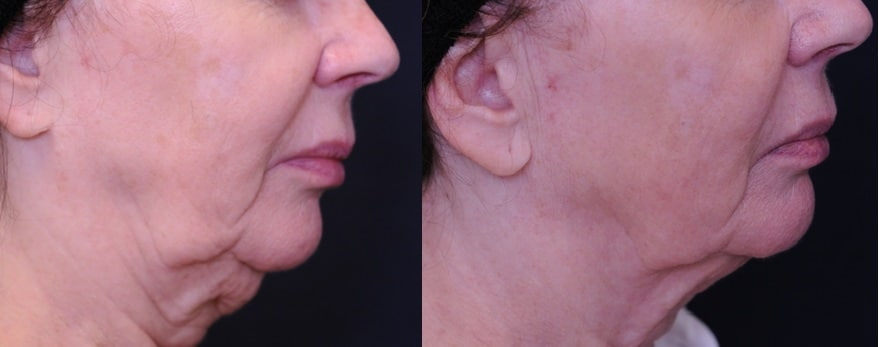 Lower Face and Neck englewood