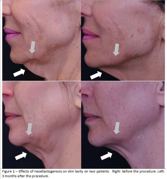 Lower Face and Neck2 englewood