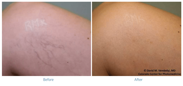 varicose-veins-before-after