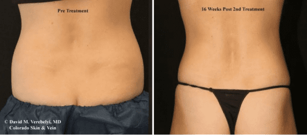 CoolSculpting Treatment Englewood