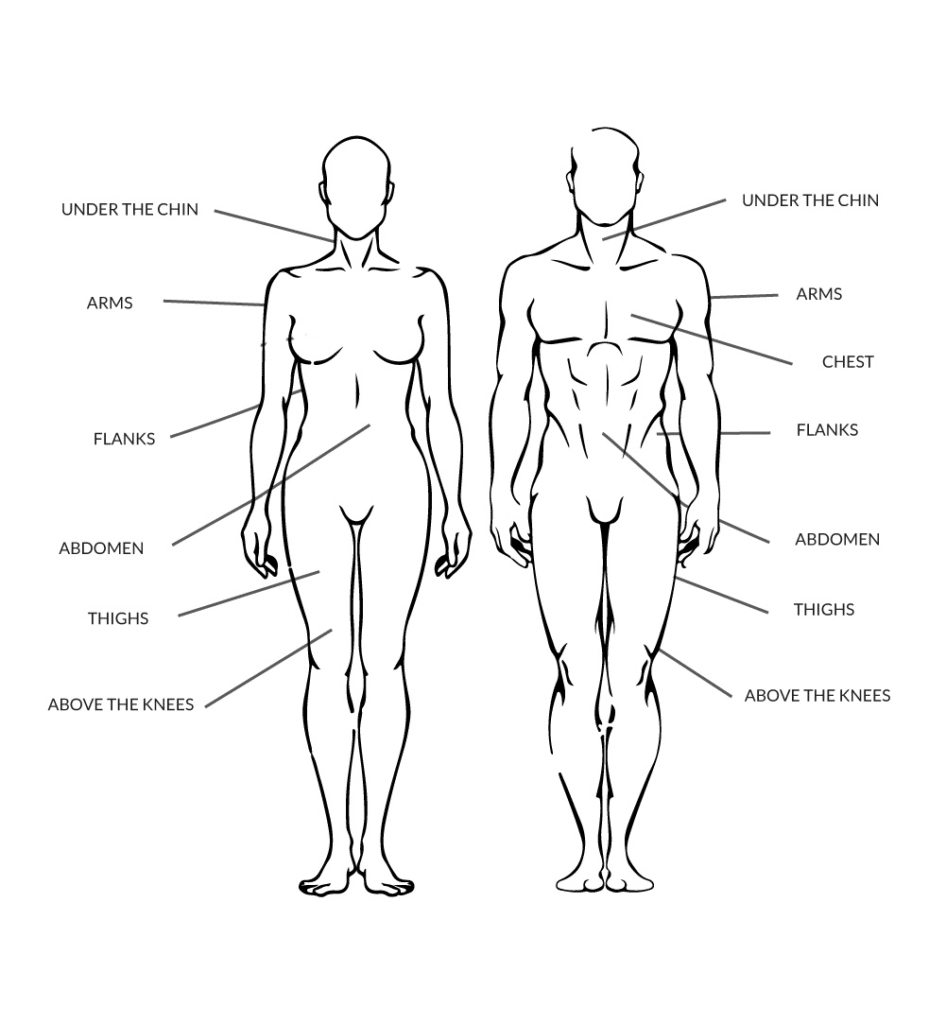Coolsculpting Teatment Areas