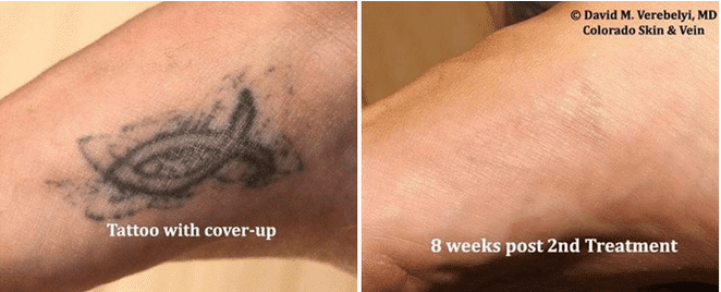 Does Laser Tattoo Removal Work For All Colors? | Colorado Skin & Vein