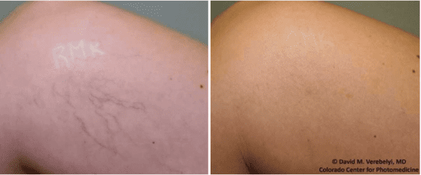 Spider Vein Removal Denver Colorado