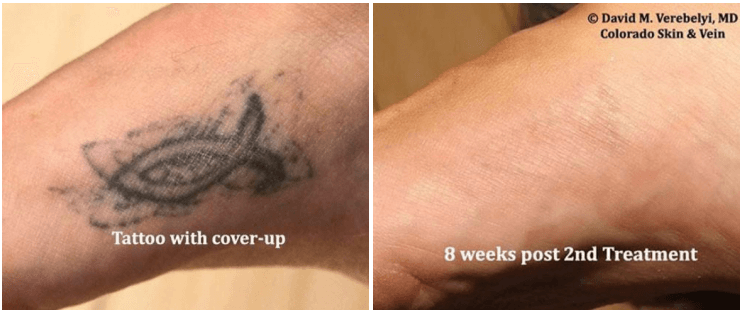 Tatoo Removal Englewood