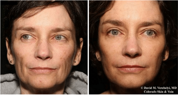 dermal-fillers-before-and-after