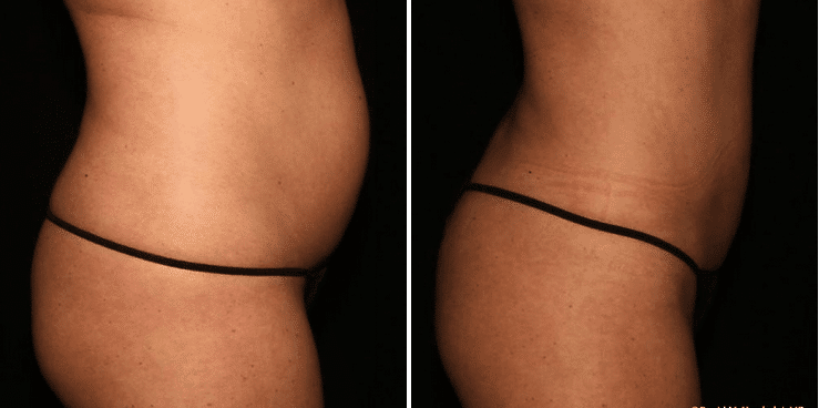 Smartlipo™ Body Sculpting Denver