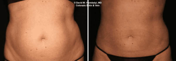 Smartlipo Body Sculpting Englewood
