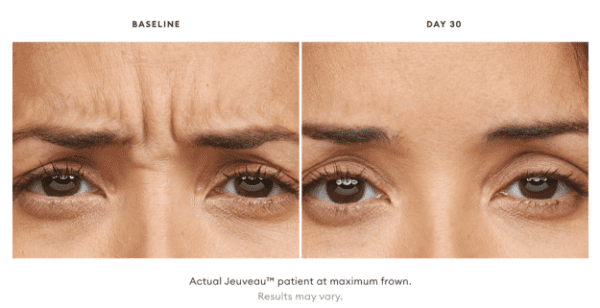 jeuveau-injections-wrinkles-newtox-BA-Denver-CO