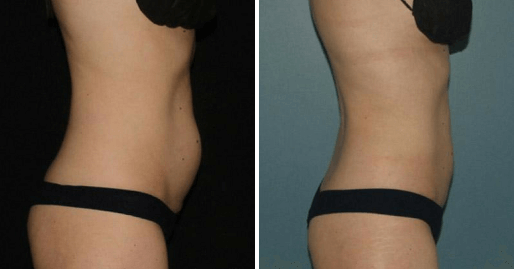 CoolSculpting Before & After Englewood & Denver, CO