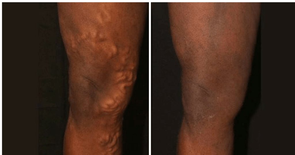 Endovenous Laser Ablation (EVLA) Before & After Gallery. Colorado Skin & Vein Serving Englewood & Denver, CO